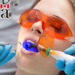 مهاجرت دندانپزشکان به کانادا در سال 2021